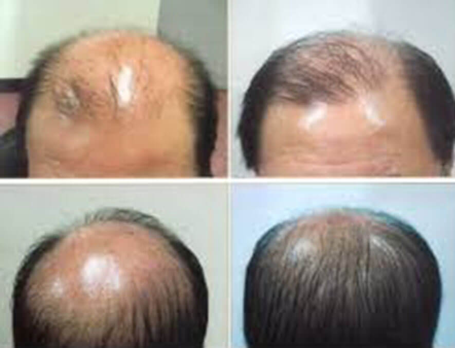 Herbal hair Growth Products in Uganda call +256777422022